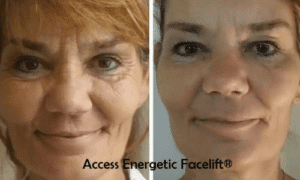 access energetic facelift results