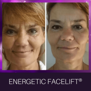 I offer access energetic facelift