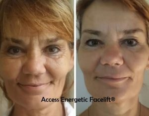 I offer access energetic facelift croydon