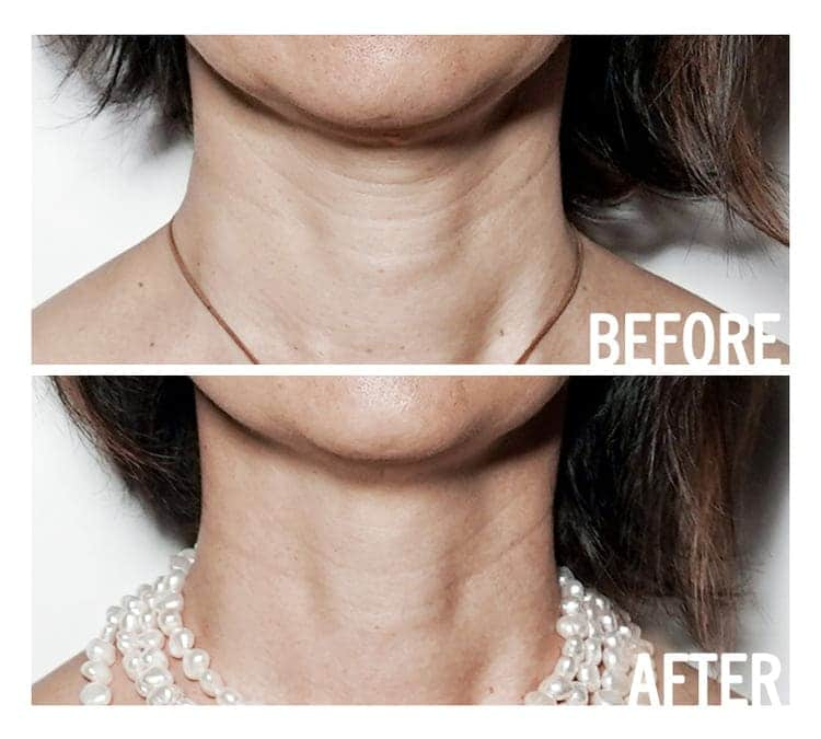 access energetic facelift before and after results on womans neck